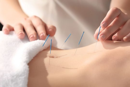 Acupuncture Benefits
