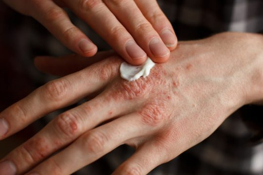 tips for treating psoriasis