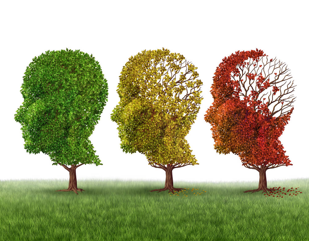 early Alzheimer's symptoms