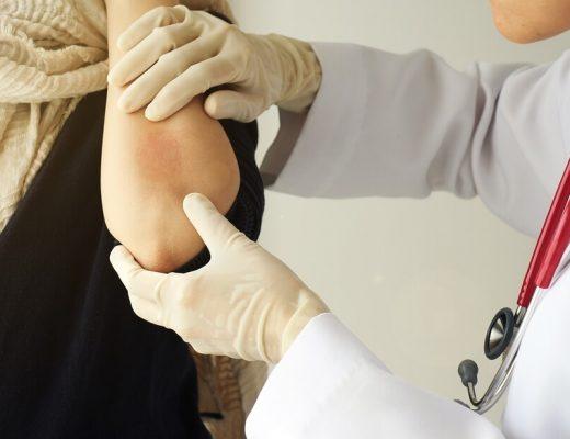 best dermatologist for psoriasis