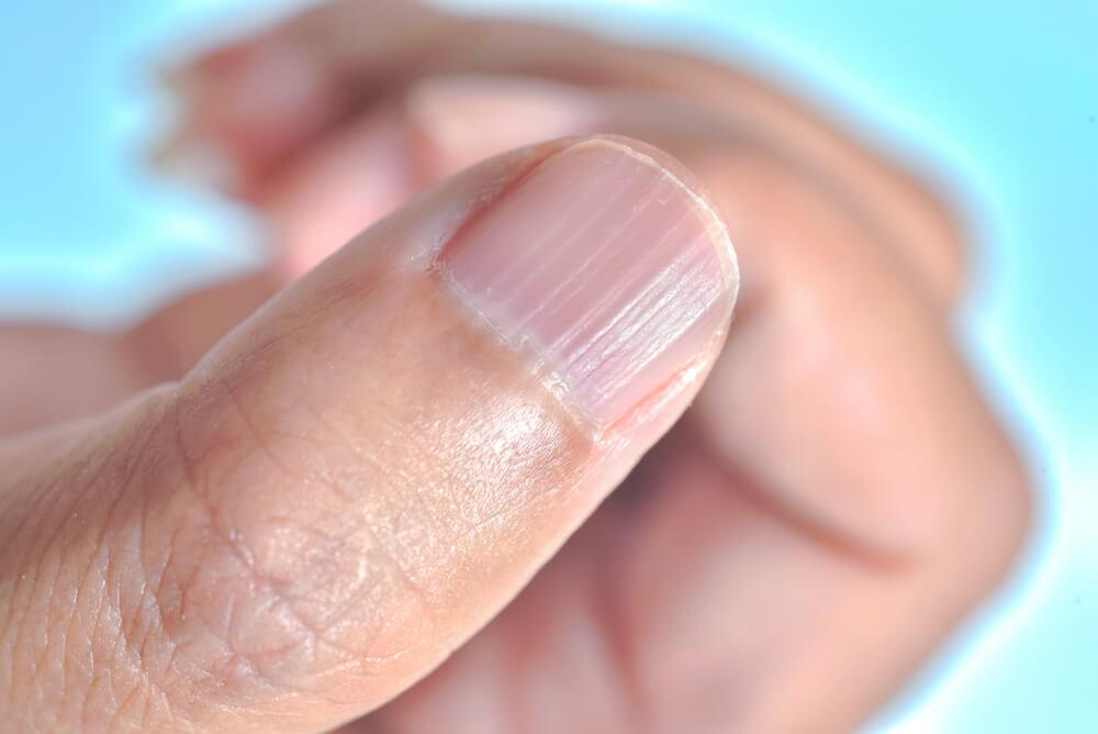 fingernail symptoms
